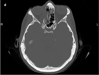 Paranasal Sinus Osteomas: Surgical Outcomes at a Single Institution